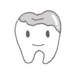 銀歯の下にむし歯ができた 治療したのになぜむし歯になるの