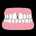 すきっ歯の治し方ってどんな方法があるの?