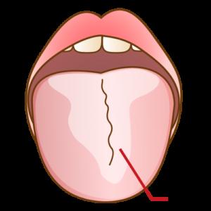舌 の 白い やつ