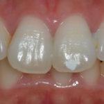 歯の表面の白いシミ。ホワイトスポットとは